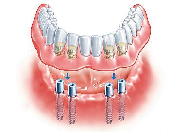 Применение покрывного протеза при отсутствии зубов