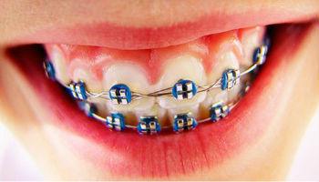 Системы выравнивания зубов