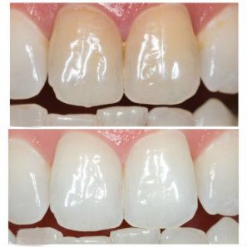 Отбеливание зуба методом Opalescence Endo