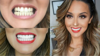 Преимущества и недостатки установки виниров на зубы