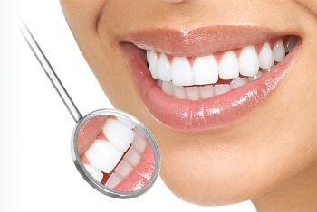 Основные мифы про отбеливание зубов