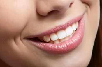 Функциональная реставрация зуба