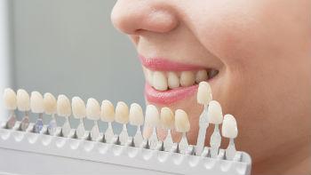 Определение цвета зубов