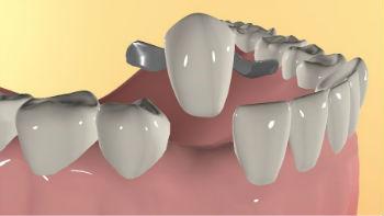 Методы протезирования без обточки зубов